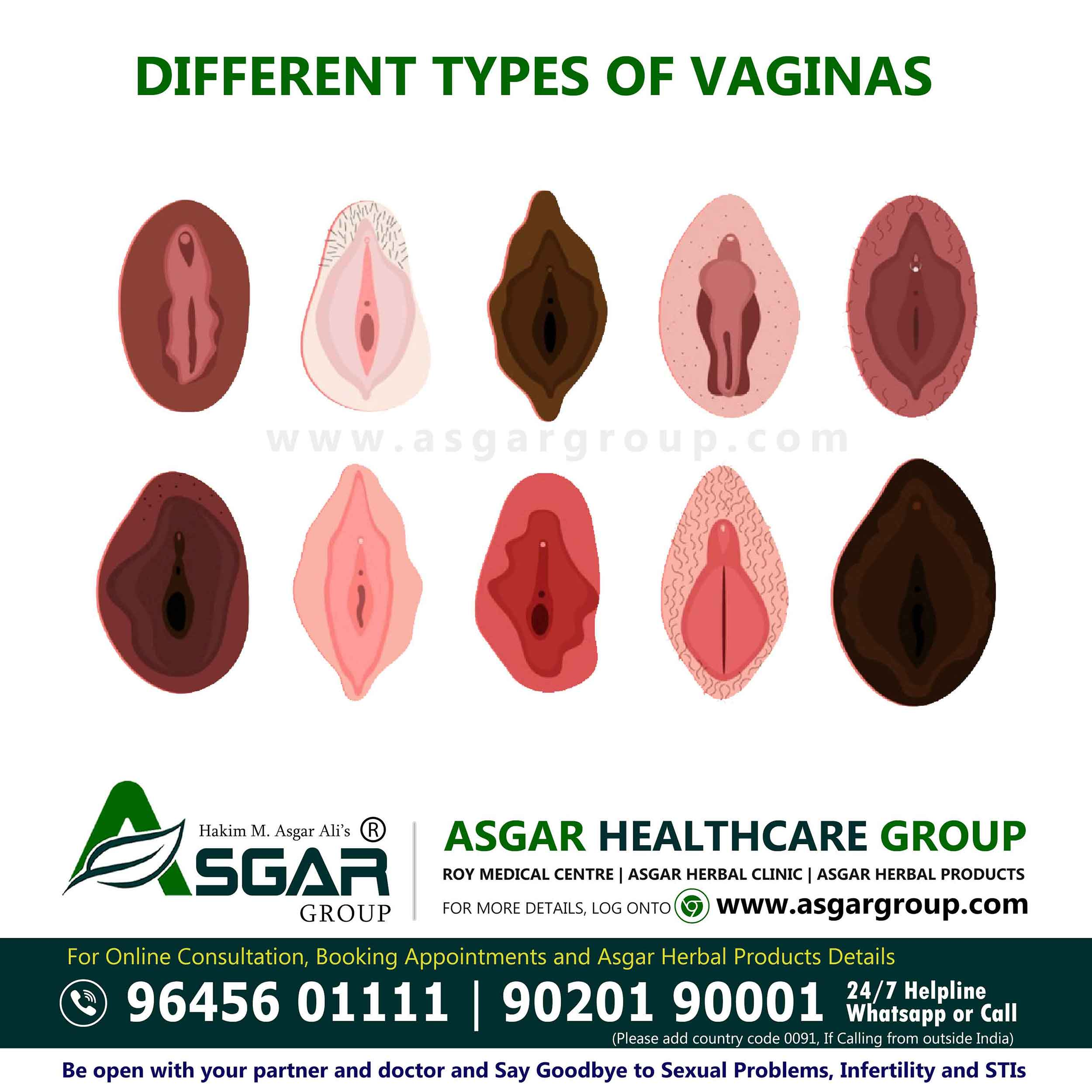 Vaginas types of There are