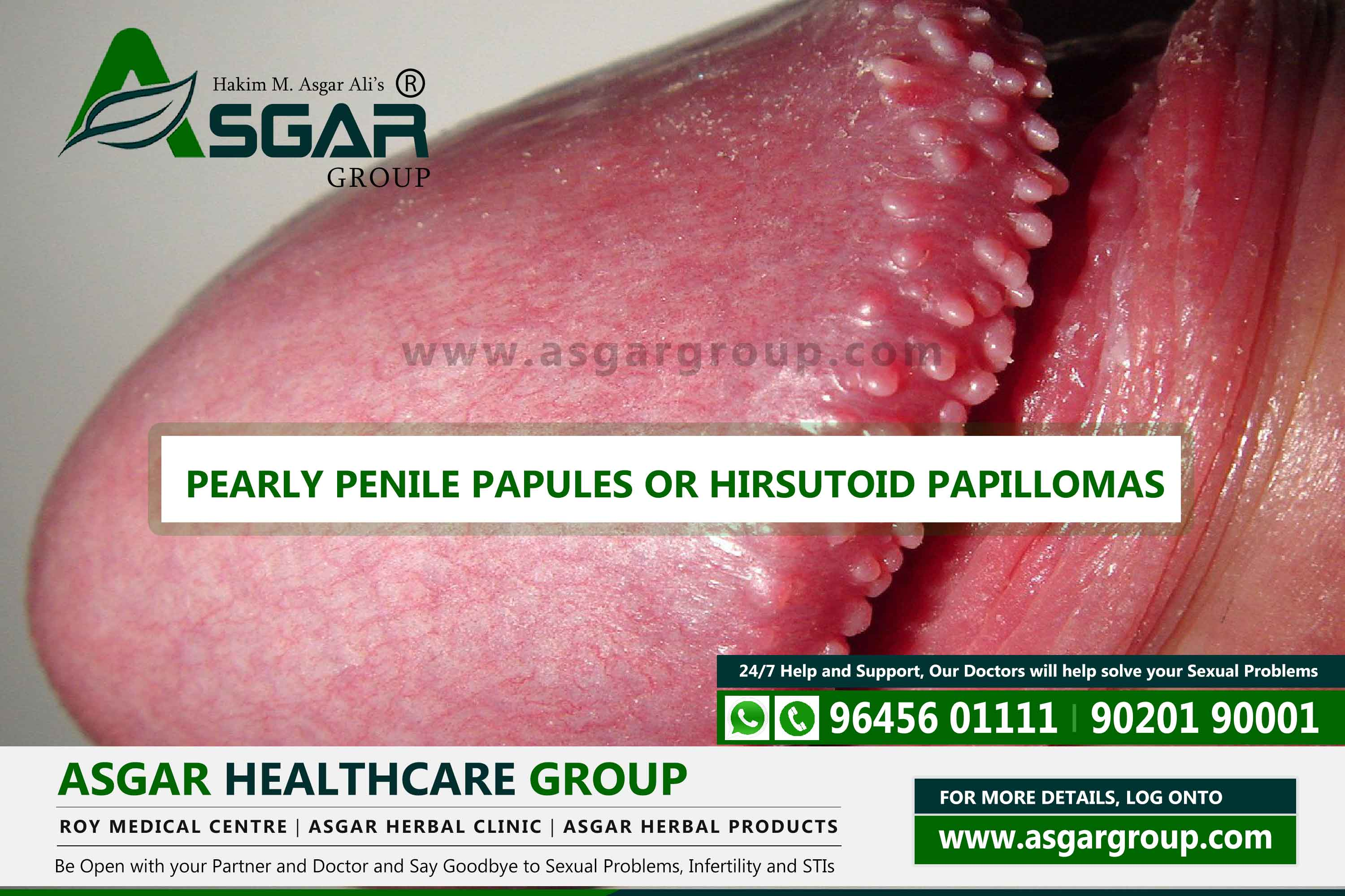 Papules head penile under Pearly penile