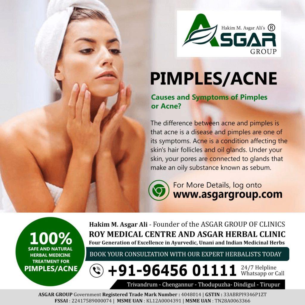 Pimples / acne