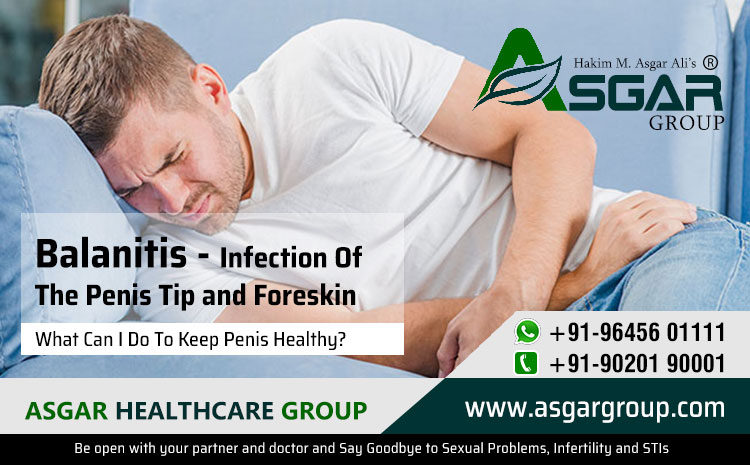 Balanitis – Infection Of The Penis Tip and Foreskin