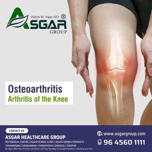 Osteoarthritis-Arthritis-of-the-Knee