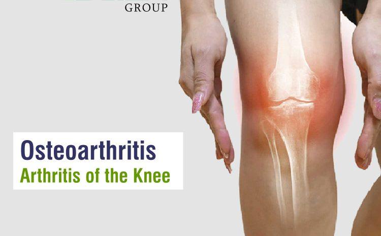 Osteoarthritis – Arthritis of the Knee